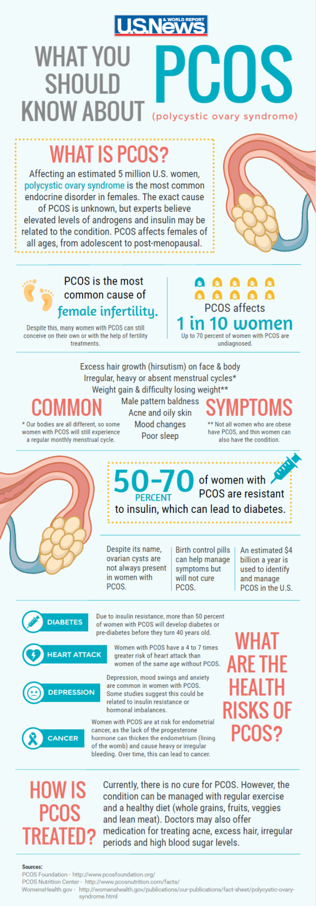 PCOS image
